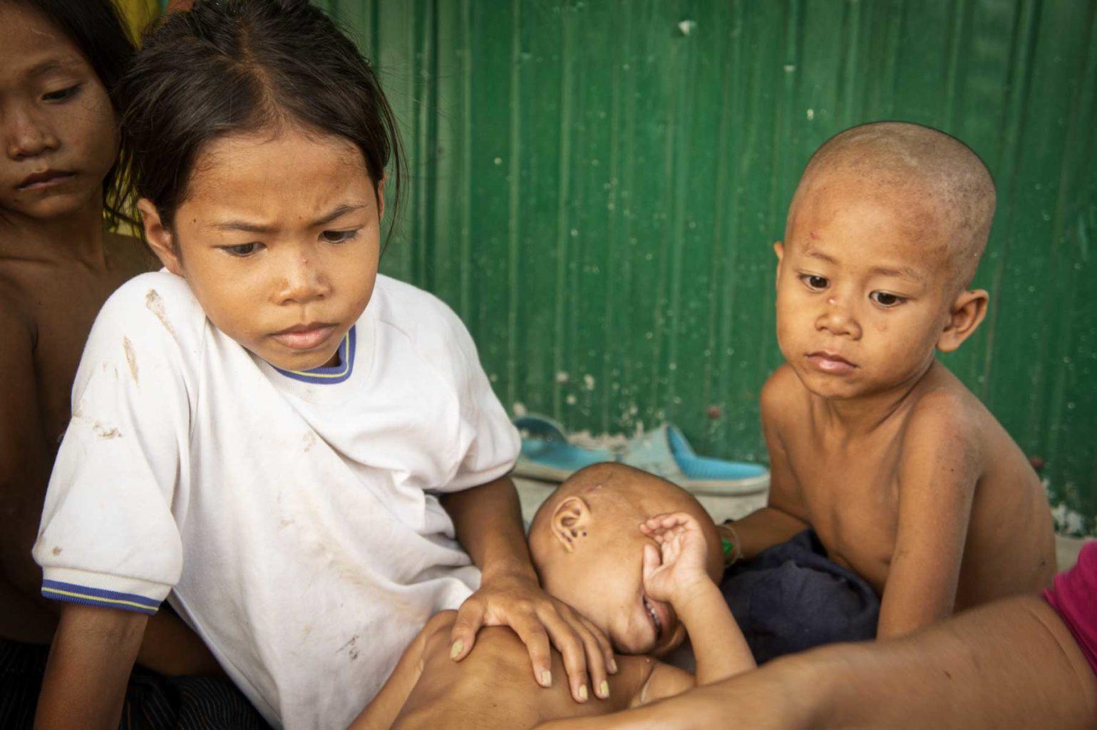 Petit garçon dans une grande souffrance localisé par nos volontaires au Cambodge. Dans les cas les plus difficiles, nous accueillons les enfants dans notre centre de protection de l'enfance de Battambang